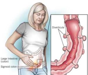 εκκολπωματίτιδα-συμπτώματα